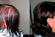 para crecer el pelo
