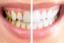 Smile Gallery / http://www.grosvenor-dentalpractice.co.uk/index.html  From teeth whitening to surgery, we offer the full package, to give you a reason to smile again.  Grosvenor Dental Practice 736 London Road Oakhill Stoke on Trent Staffordshire ST4 5NP / by Grosvenor Dental Practice