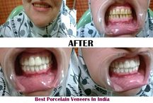 Dental veneers in India - Cosmodent Gurgaon / Dental veneers in India: Get teeth veneers treatment & Porcelain veneers at affordable cost by best dental surgeon at Cosmodent Dental Clinic in Gurgaon.