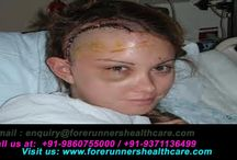 Brain cancer / Brain Tumour Information On FORERUNNERS Great Results For You on forerunnershealthcare.com