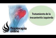 ejercicios dolor troncanteritis