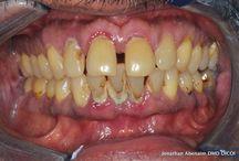 Periodontal Disease & Implants Case