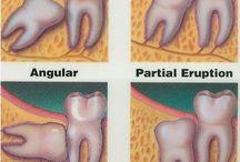 3rd molars
