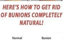 how to get rid of bunions completey naturally