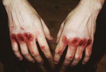 bruised aesthetic