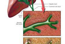 Primary Sclerosing Cholangitis