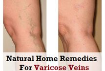 Home Remedies for Varicose Veins / How to get rid of Varicose Veins