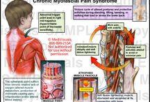 Myofacial Pain Syndrome