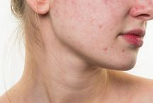 Acne Vulgaris / Acne Vulgaris is commonly seen in adolescents, characterized by blackheads and pimples over the face. Besides scarring, it can also have a psychological impact on the patient.