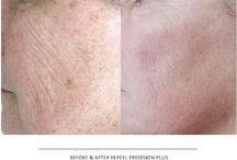 Before and After pictures / by Woodglen Aesthetics