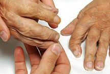 Palindromic Arthritis