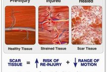 Muscle Injuries / Causes of Muscle Injuries and How To Heal Them