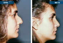 Rhinoplasty surgery in Greece