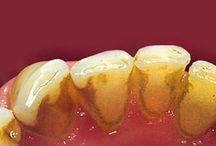 Cómo eliminar la placa  bacteriana  de tus  dientes, boca y encias