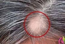 Saç tedavi