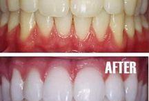blanquear diente