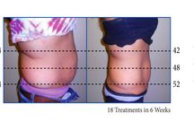 Maryland Laser Weight Loss | Laser Lipo-Light / Our board is about losing weight.  Our laser lipo program helps you lose TARGETED weight.  Love handles, muffin tops etc. Call 877- Lose Fat