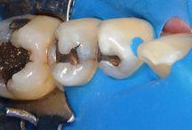 Restorative Operative Dentistry