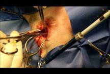 Laser Surgeries