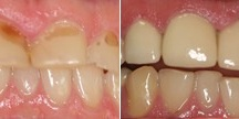 Porcelain Crowns & Composite Fillings