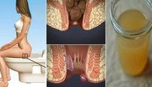 Health&hygeine