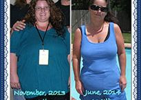 Judith Pusch Gastric Sleeve Surgery Success Story / An Austin Patient Has Gastric Sleeve Surgery and Can Fit Into Junior Clothes Again!