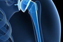 Reverse shoulder surgery