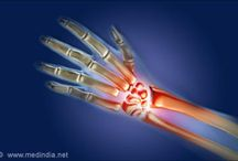 Joint Replacement in India