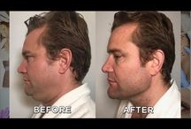 SculpSure Submental ('double chin reduction') treatment