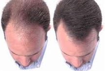 Hair Building Fiber Hair Loss Solution / Professionals are using hair building fiber and get the hair again. it is best hair regrowth idea in just 60 seconds. http://www.newhairbuildingfiber.in/