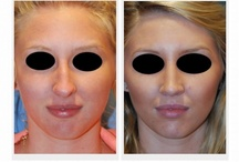 Rhinoplasty Seattle | Bellevue
