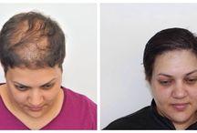 arreglo pelo