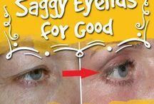 saggy eyes