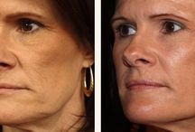 Facial Toning Aerobics That Regain Your Looks / Reconstruct Your Face And Claw Back Lost Youth To Your Face With Facial Workout Cures