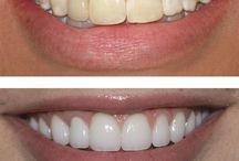 Affordable Porcelain Veneers / Porcelain veneers can also cosmetically improve the appearance of teeth with superficial stains and dark colored teeth that do not respond well to bleaching or whitening procedures. It can make even the darkest teeth appear bright white.