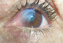 Ojos / Ojos