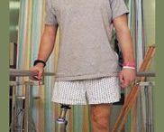 exercies - prosthetic leg