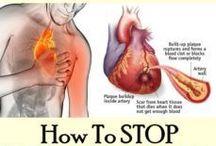 STOP HEARTATTACK