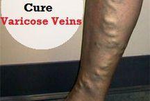 Varicose veins healing