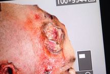 Foam Latex Chemical Burns. / Makeup Prosthetics. By. Paulie King Studios.