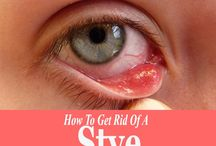 Eye's Infection & Natural Remedies