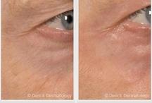 Resurfacing / Skin Resurfacing | Laser Skin Resurfacing | #Resurfacing | Laser Resurfacing