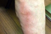 Complicaciones: Tromboflebitis