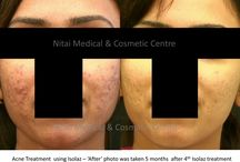 Acne Treatment / We provide different types of acne treatment services