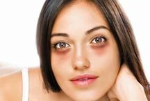 10 tips on how to remove dark circles eyes