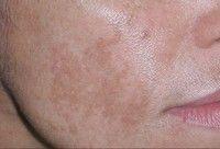 manchas de la cara