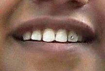 Dental Jewellery