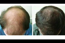 Рост волос на лысине