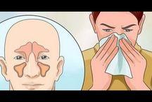 El gripe