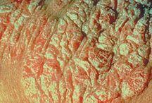 psoriasis fotos
